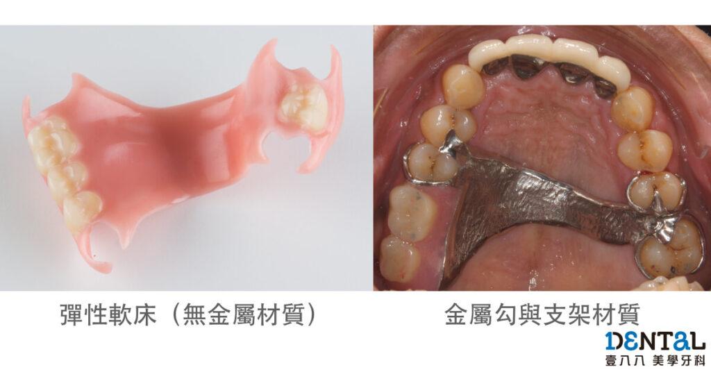 活動假牙材質