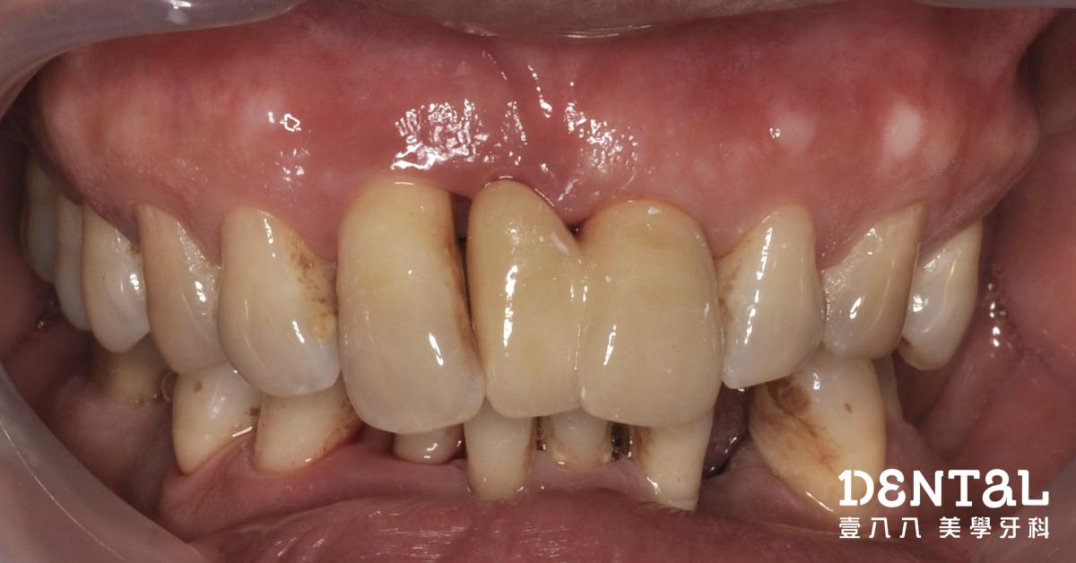 全瓷冠多生牙案例