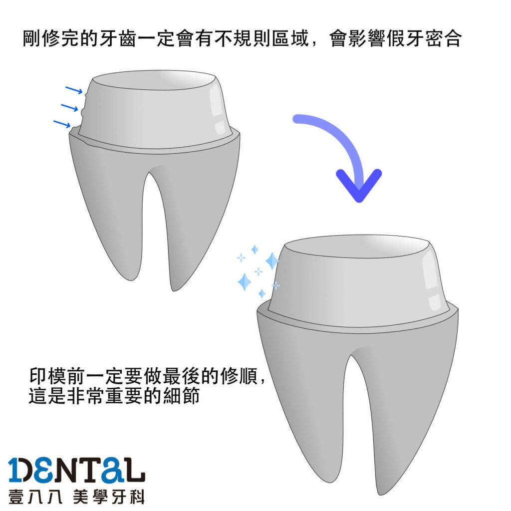 牙齒最終修磨