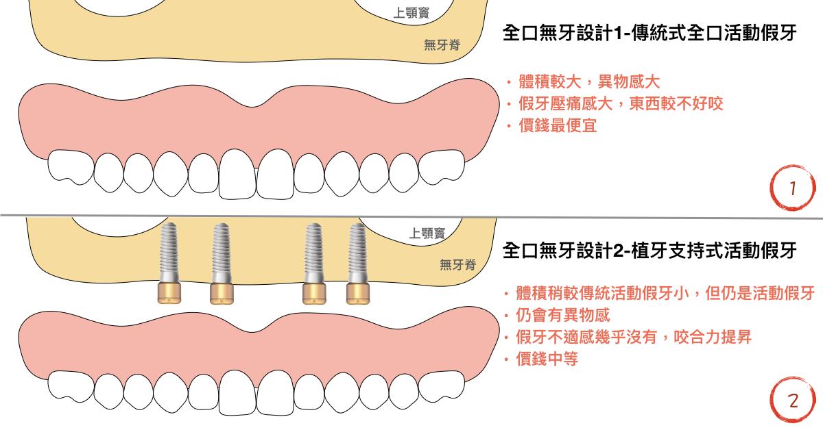 傳統式全口活動假牙與植牙支持式活動假牙