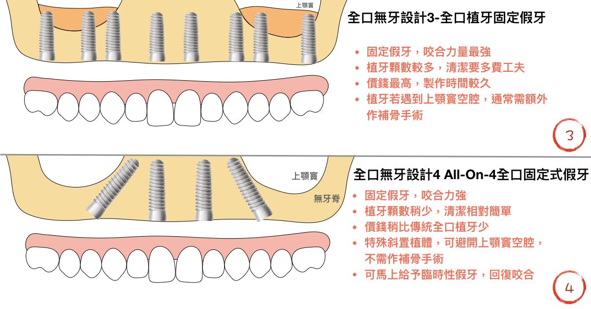 全口植牙式固定假牙與all on 4 全口固定式假牙