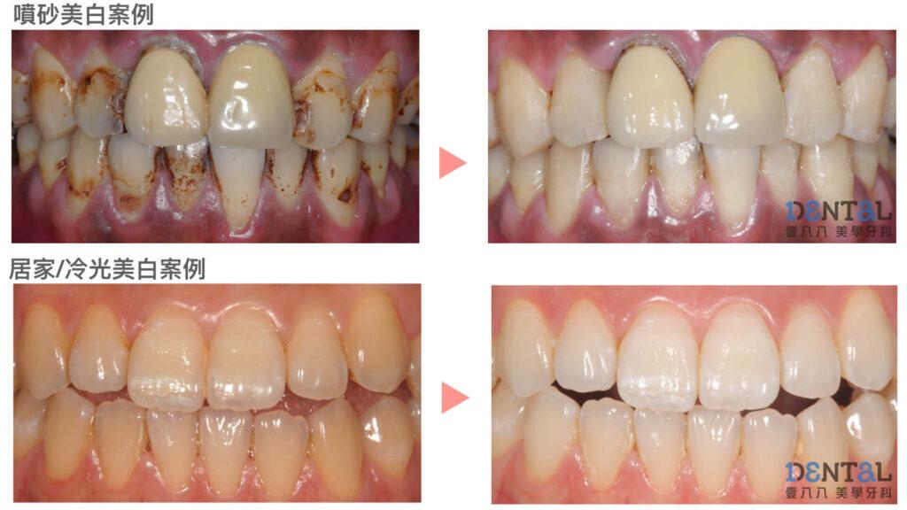 高雄噴砂牙齒美白案例