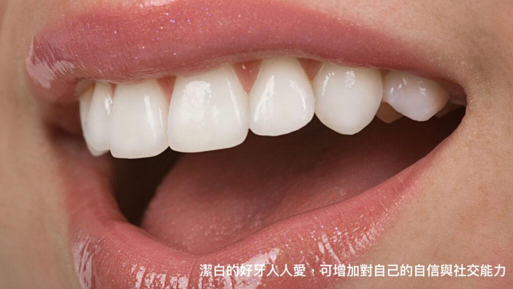 高雄牙齒美白