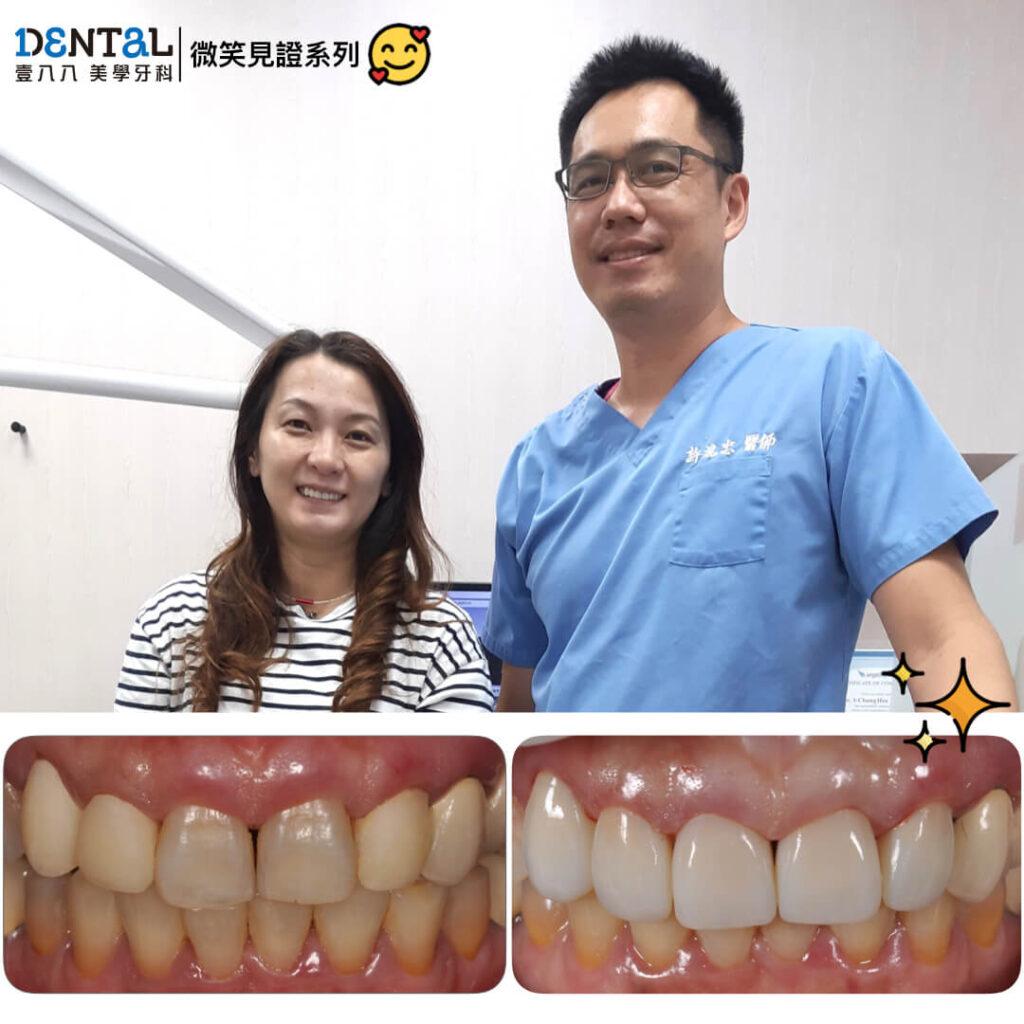 案例-前牙牙冠001
