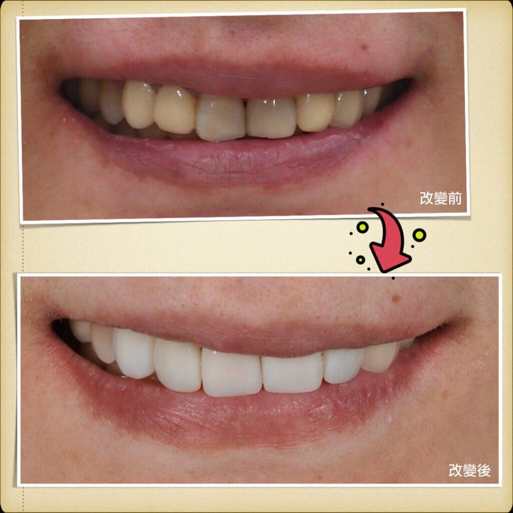 案例-前牙牙冠4.001