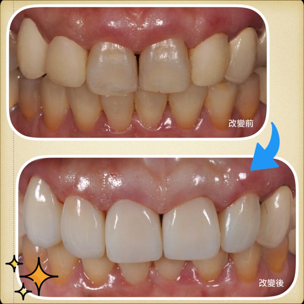案例-前牙牙冠5.001