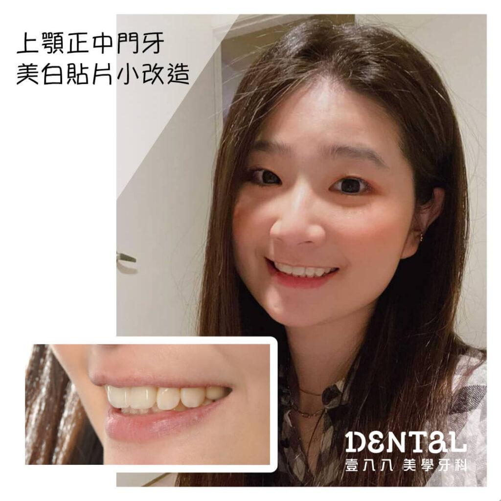 前牙兩顆貼片_封面